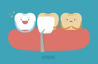 Veneers in Ungarn