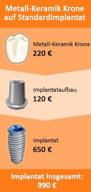 Was ist ein Zahnimplantat