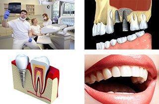Alles Über Zahnimplantate