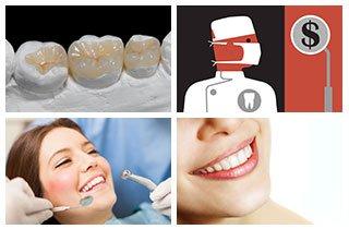 Zahnkrone kosten