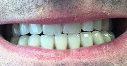 Zahnbehandlung in Ungarn Erfahrungen