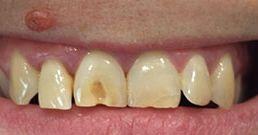 Größere Zahnschäden