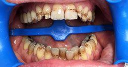 Schwarze zähne