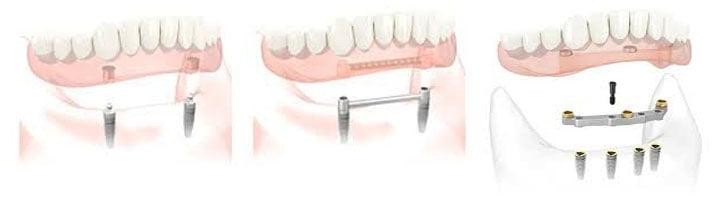 implantatgetragener Zahnersatz