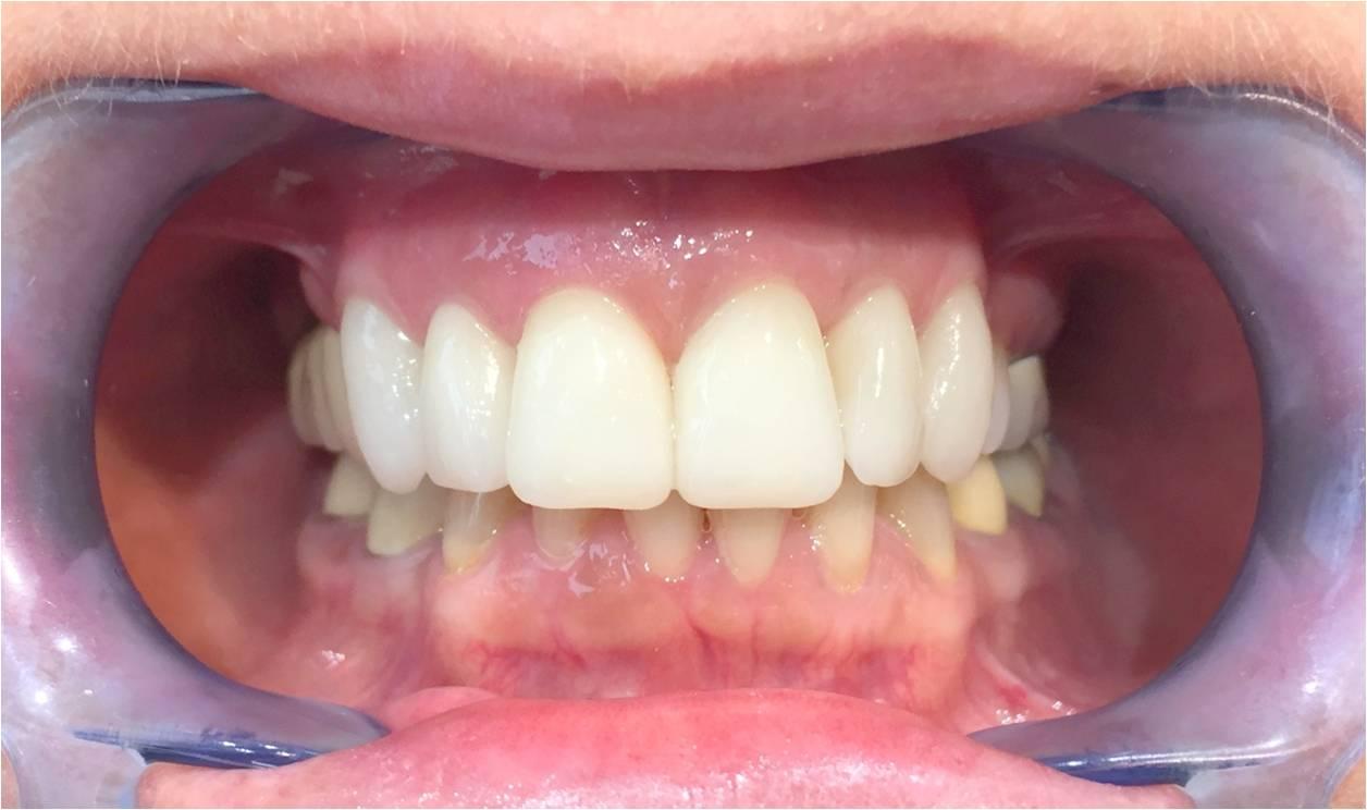 Zahnarzt Ungarn Erfahrungen