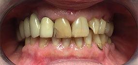 Zahnverfärbung