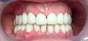 Zahnverfärbung nach Behandung