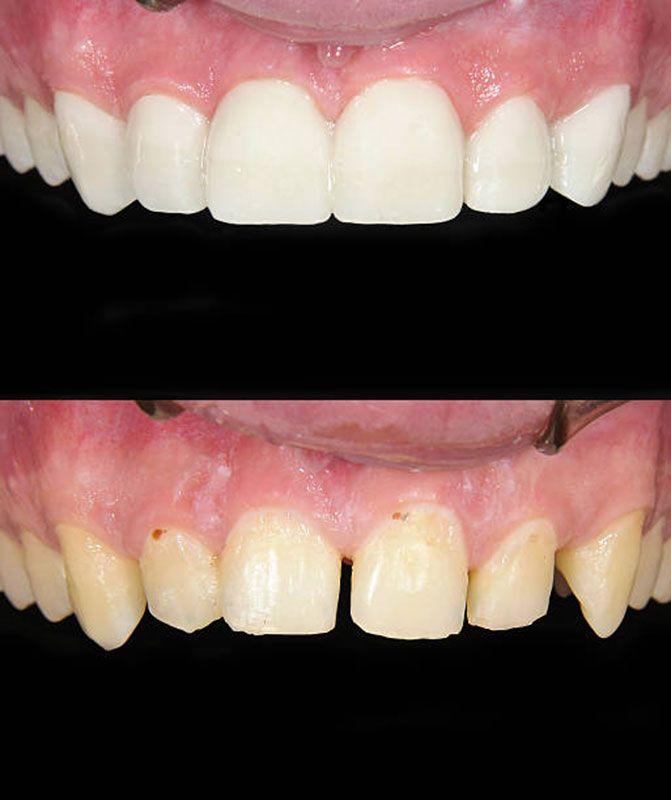 asthetische-zahnkorrektur